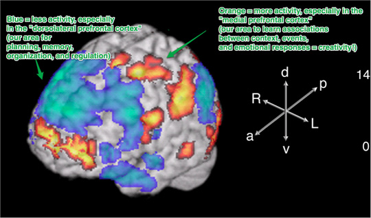 Our brain and creativity